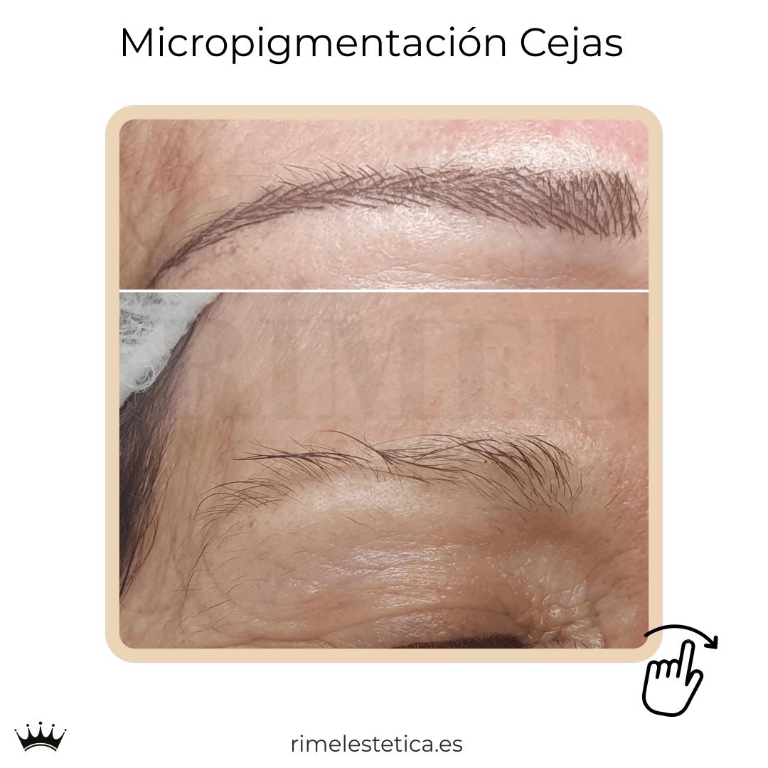 album ultimos trabajos de micropigmentacion y eyeliner de rimelestetica avanzada en torrent valencia 10