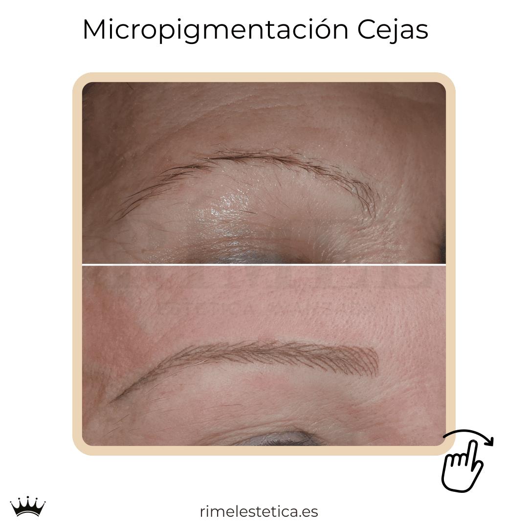 album ultimos trabajos de micropigmentacion y eyeliner de rimelestetica avanzada en torrent valencia 12