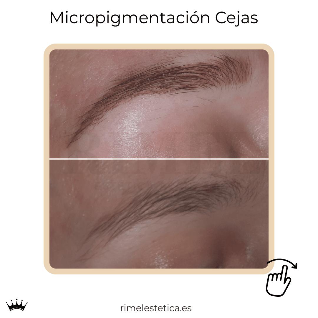 album ultimos trabajos de micropigmentacion y eyeliner de rimelestetica avanzada en torrent valencia 13