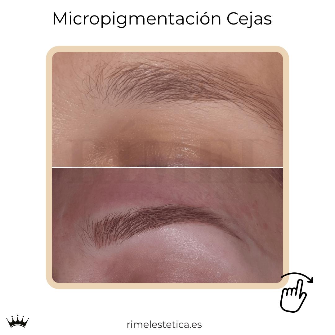 album ultimos trabajos de micropigmentacion y eyeliner de rimelestetica avanzada en torrent valencia 15
