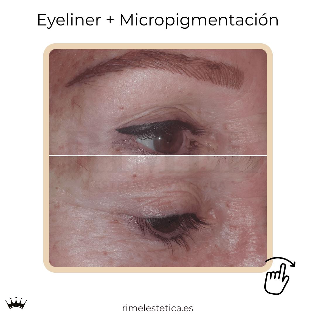 album ultimos trabajos de micropigmentacion y eyeliner de rimelestetica avanzada en torrent valencia 3