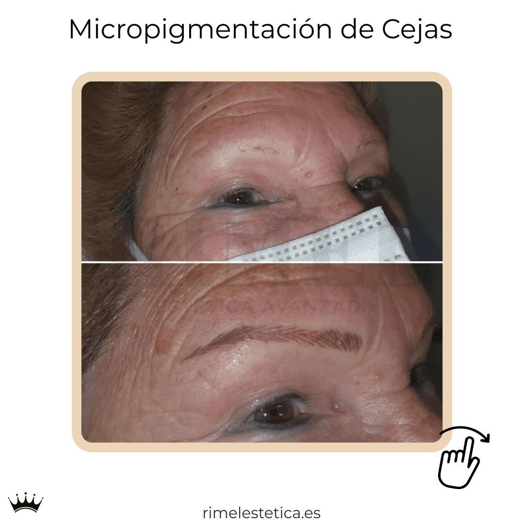 album ultimos trabajos de micropigmentacion y eyeliner de rimelestetica avanzada en torrent valencia 4