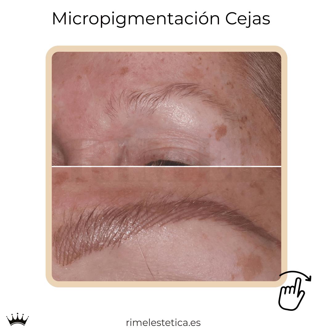 album ultimos trabajos de micropigmentacion y eyeliner de rimelestetica avanzada en torrent valencia 9
